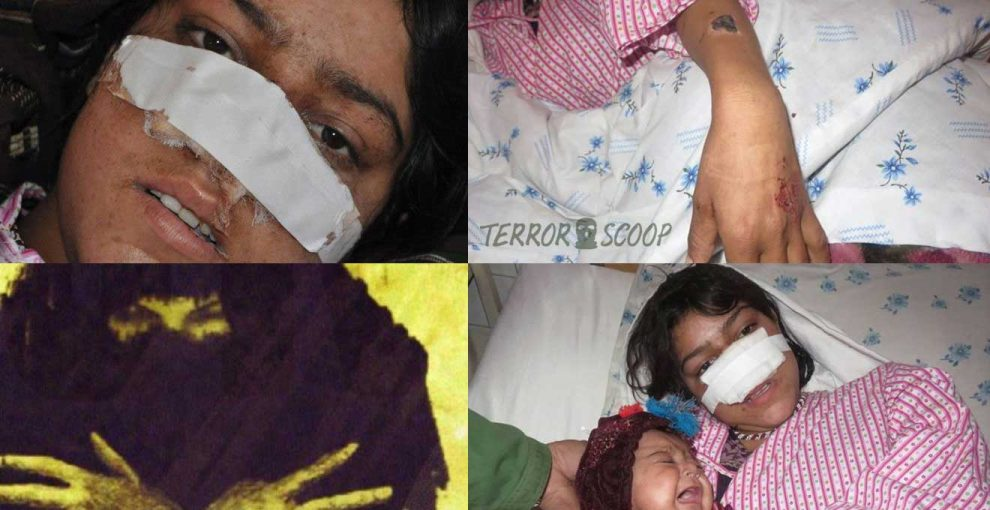 Pakistani-Muslim-Chops-Off-his-Wife-Nose,-Hair,-Burnt-Her-Body-with-a-Hot-Iron