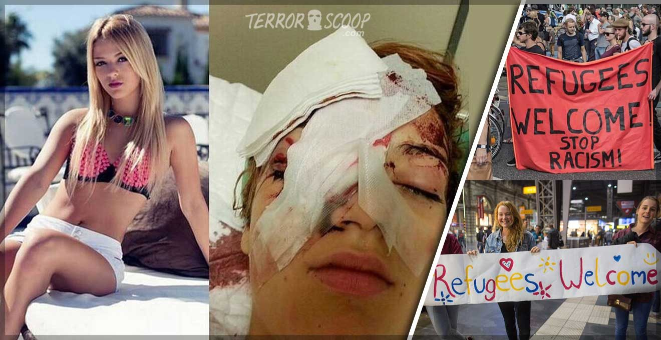Danish-Teen-Girl-blinded-in-Spain-by-six-Moroccan-Muslim-Migrants-in-racially-motivated-Hate-Crime