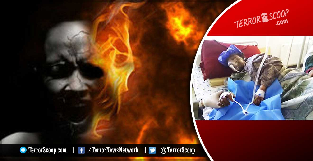 Afghanistan-14-Year-Old-Pregnant-New-Bride-Burnt-to-Death-By-Her-In-laws