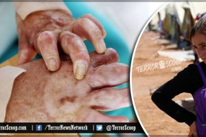 Yazidi-Girl-Sets-Herself-on-Fire-to-Avoid-Capture-by-Islamic-State's-rape-and-abuse